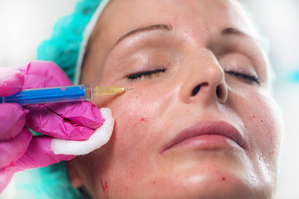 woman having non surgical eye bag removal treatment with dermal fillers