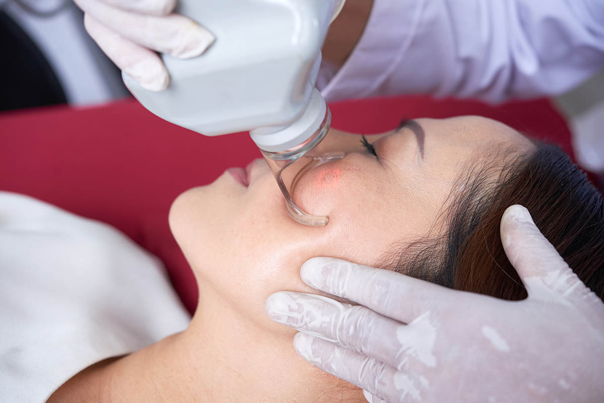 Laser resurfacing eye bag treatment