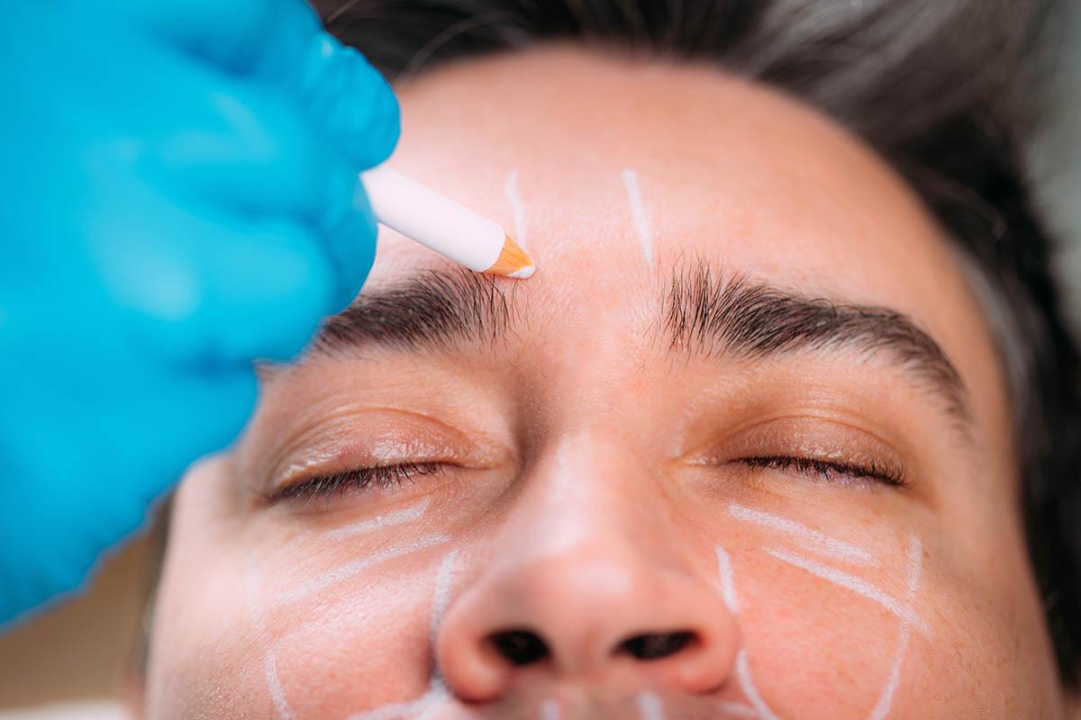 Dermal Fillers for Men eye bag treatment
